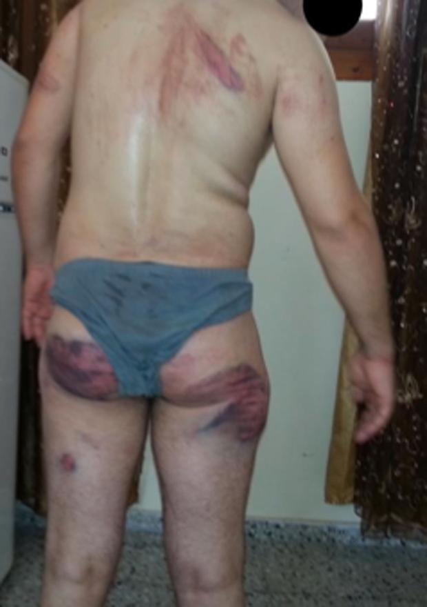 Hamas torture victim